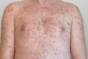 Parents warned after possible measles outbreak at Bristol primary school