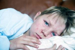 Measles outbreaks in the UK - here's what to do to prevent catching it