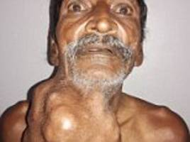farmer, 55, has life-changing surgery to remove a 1.4kg tumour from his neck