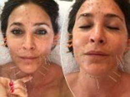 lisa snowdon turns to acupuncture after boozy holiday