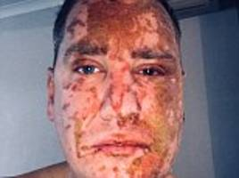 Acid attack victim reveals horror burns to his face and arms