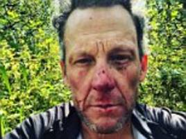 lance armstrong shares bloodied face shot after colorado bike crash