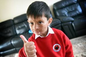'my favourite this is making friends' brave boy whose face was burned in pakistan gas explosion starts school in glasgow