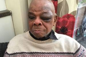 Croydon grandfather has pension robbed in horrific daylight attack which leaves him with horrendous injuries