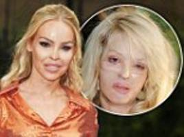 Katie Piper reveals she suffers from depression and anxiety a decade after harrowing acid attack