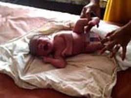 'miracle' baby with four legs and two penises draws a crowd