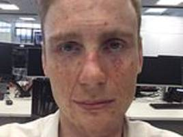 selfie app reveals the devastating consequences of ignoring your sunscreen