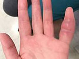 swollen pinky finger was a rare sign of deadly tuberculosis for californian woman, 42