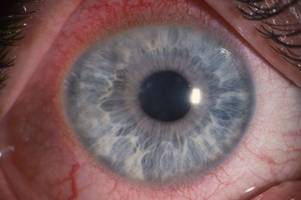warning after outbreak of contact lens infection