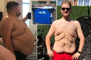 Instagram slimmer who shed 18 STONE stunned as 92,000 followers crowdfund for loose skin removal