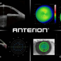 heidelberg engineering announces the ce-marking of anterion