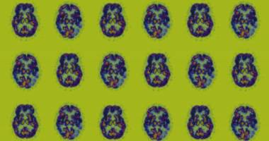 Americans Are Living Longer. That Will Mean More People With Alzheimer's.