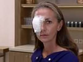 ryder cup fan, 49, who was blinded when her eyeball exploded says she could have been killed