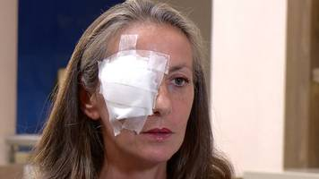ryder cup: spectator blinded in one eye says she could have died on golf course