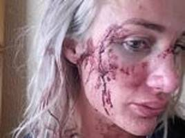 army medic who saved lives in afghanistan was left feeling suicidal after  ex-boyfriend raped her