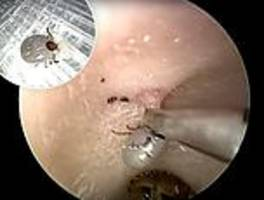 live wriggling tick is tugged out of a patient's ear