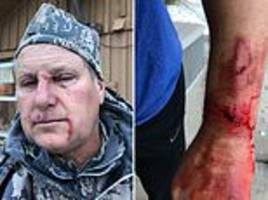 man survives grizzly bear attack in montana