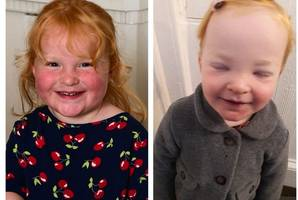desperate mum's plea to find cure for rare disease that makes young daughter swell to twice her size