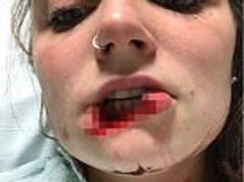 woman reveals she finally has closure after her ex-boyfriend bit off her lip
