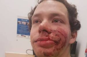 witham mum's plea to find driver who knocked son off his bike and left him bleeding in the road