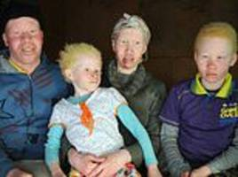 South Africans with albinism reveal daily struggle with discrimination and fear of persecution