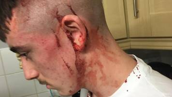 boy, 14, 'lucky to be alive' after north belfast hammer attack