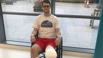 amputee pc told public how to save his life after car crash