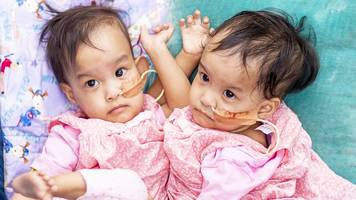 conjoined twins: australian surgeons try to separate bhutanese girls