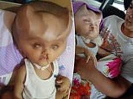 toddler battling a rare brain condition is left with 'devil horns'