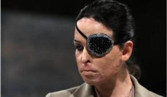 gessica notaro attacker gets 15 years for acid attack
