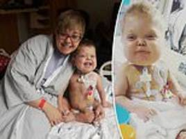 mother donated a kidney to her two-year-old son after heart transplant caused his organs to fail