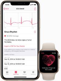 Apple's highly anticipated heart monitoring feature is finally available for the Apple Watch (AAPL)