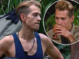 james mcvey's band are 'worried' about his weight loss on i'm a celeb
