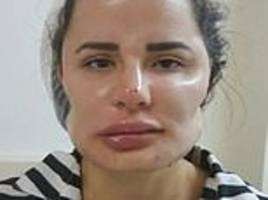 Patients reveal their distorted features as dozens come forward to sue Brazilian plastic surgeon