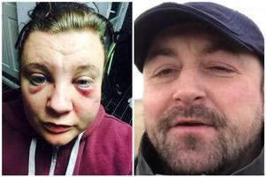 this is the brutal domestic violence video that city mum-of-two wants you to see