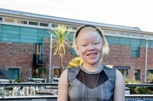 dundee student fears malawi witch doctors will hunt and kill her for body parts for being an albino