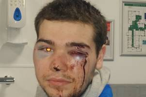 Mum's horror after disabled son attacked at random on walk to see Christmas lights