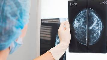 life-extending drug perjeta approved for secondary breast cancer
