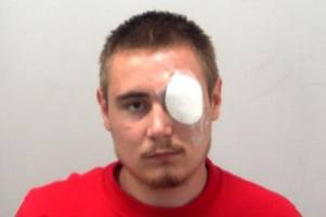 thug jailed for stabbing teenage boy in leg in southend