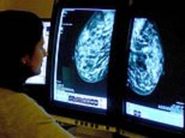 'Promising' test could predict whether breast cancer will come back