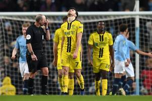 the burton albion players injured and unavailable ahead of manchester city clash
