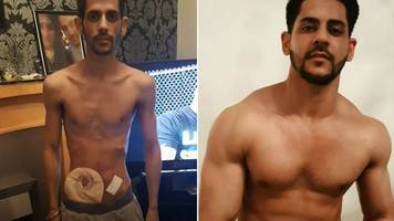 crohn's disease: weightlifter's remarkable transformation