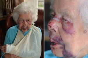 family of pensioner who suffered shocking facial injuries in robbery thank public for support