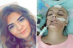 teenager's 'sickness bug' turned out to be life-threatening brain abscess