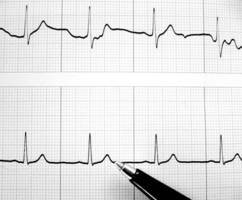hormone therapy could increase risk of heart disease: study