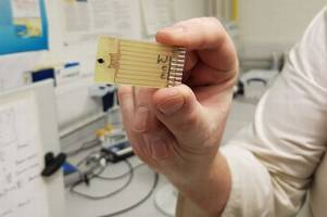 new sepsis test developed at scottish university could save thousands of lives