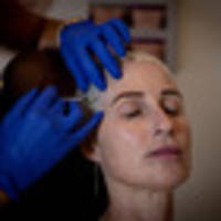 fund botox for migraine patients, say specialists