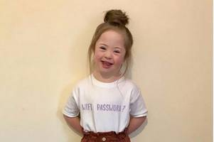scotland's champions: adorable little girl with down's syndrome becomes in-demand child model