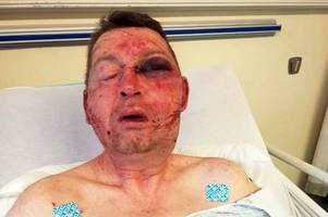 community sickened by horrific slashing of vulnerable scot in glasgow home