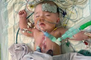 a margate mum's laptop was stolen while her five month old son was having heart surgery